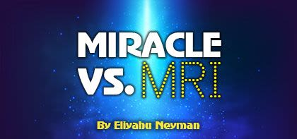 Medical Miracle vs. MRI